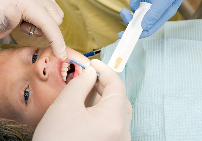 young boy getting fluoride treatment