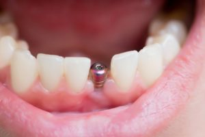 An implant placed inside a person's jaw.